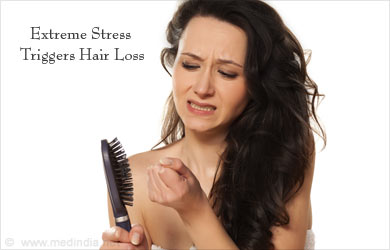 Hair Loss and Balding