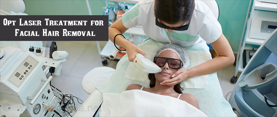 Opt Laser Treatment for  Facial Hair Removal