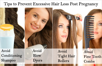 Tip to Prevent Excessive Hair Loss