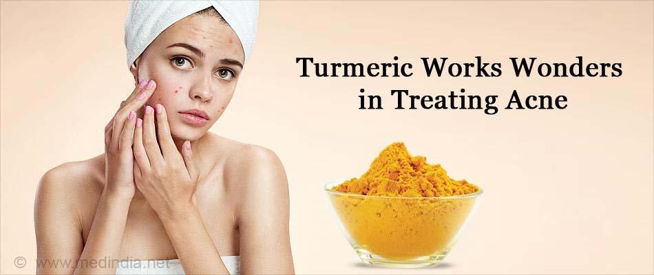 Turmeric Works Wonders in Treating Acne