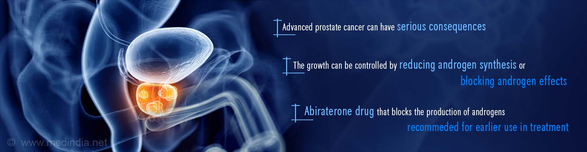 Early Use of Abiraterone in Hormone-Sensitive Advanced Prostate Cancer Recommended