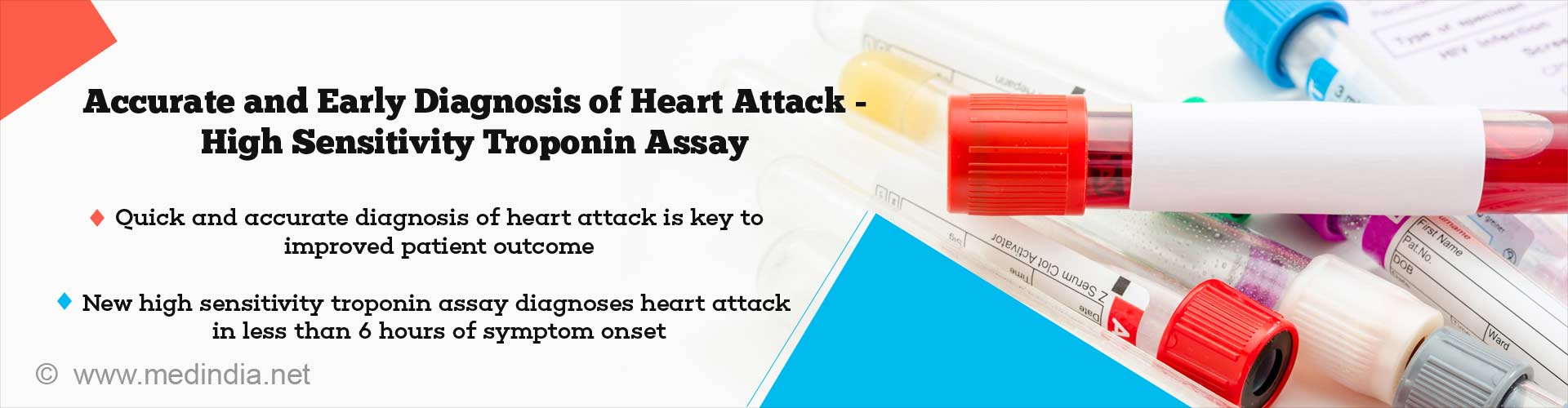 New High Sensitivity Troponin Assay - A Potential Game Changer In Heart Attack Diagnosis