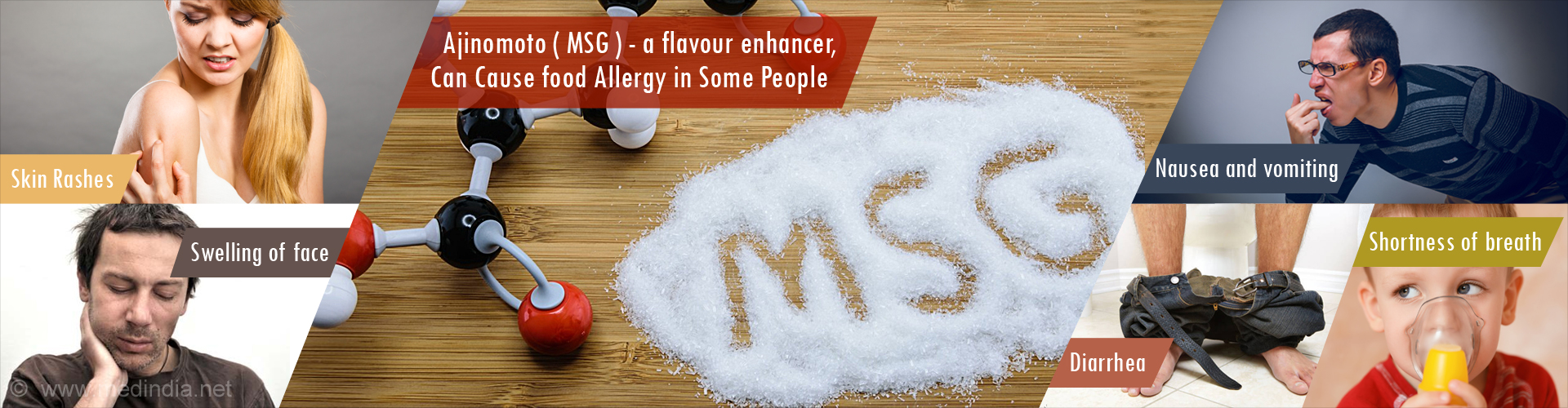 Ajinomoto ( MSG ) - a flavour enhancer,  Can Cause food Allergy in Some People