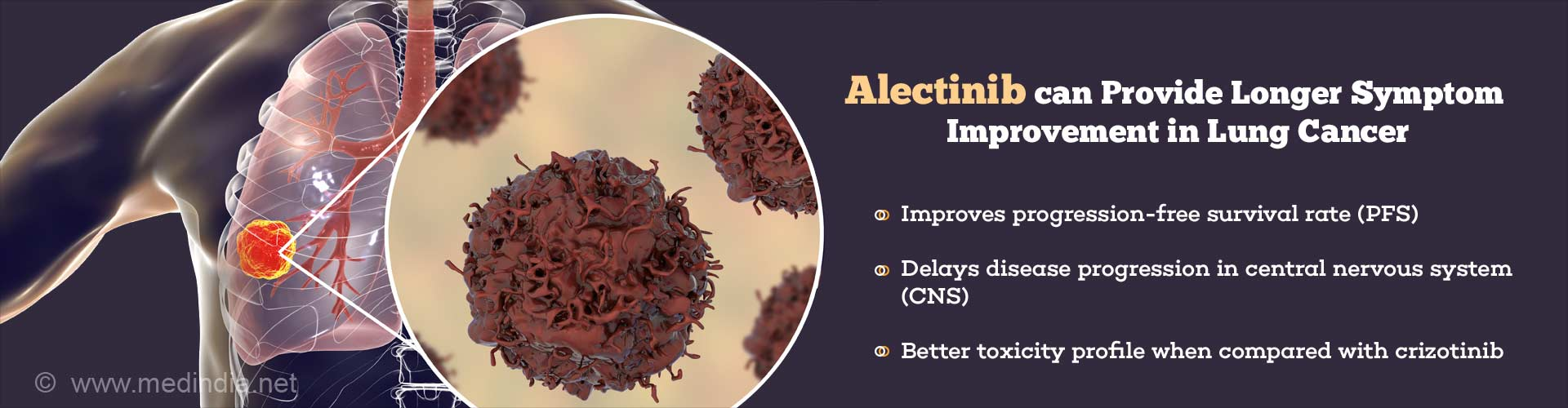 alectinib can provide longer symptom improvement in lung cancer - improves progression-free survival rate (PFS) - delays disease progression in central nervous system (CNS) - better toxicity profile when compared with crizitinib