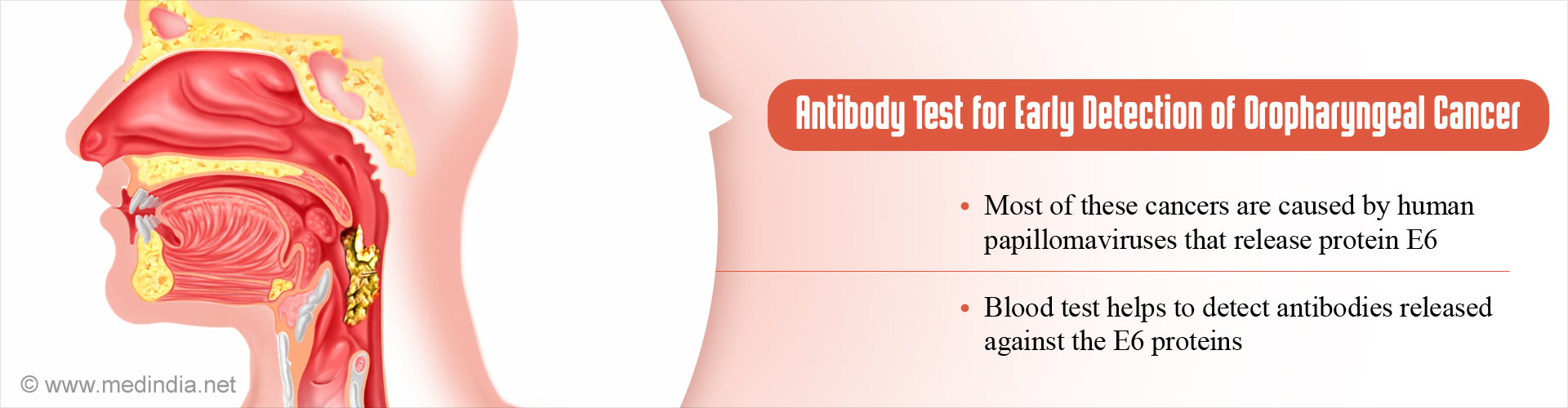 New Antibody Test Helps in Early Detection of Oral Cancer