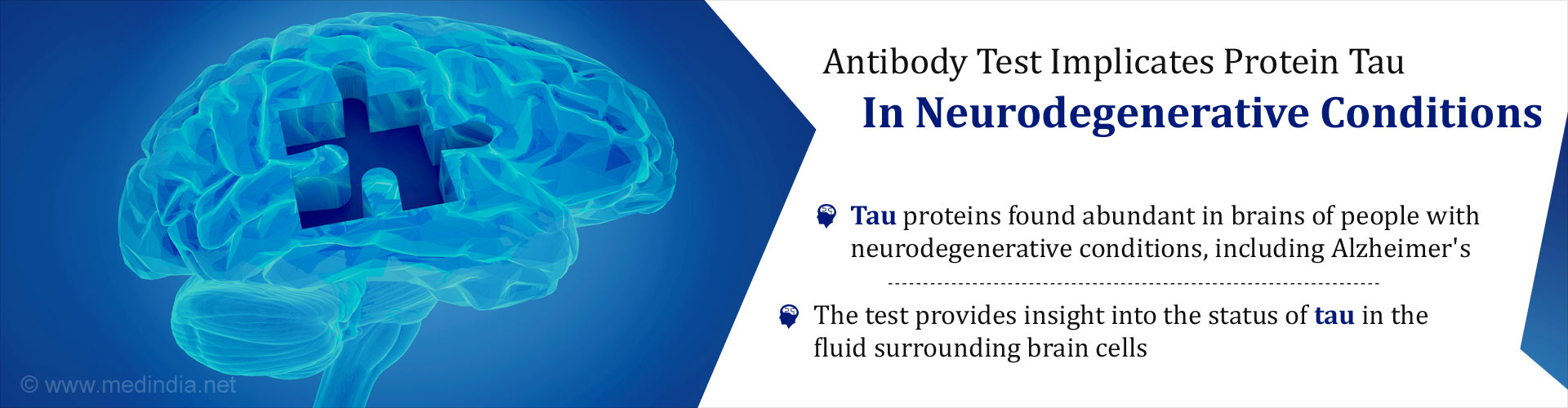 Antibody test implicates protein tau in neurodegenerative conditions