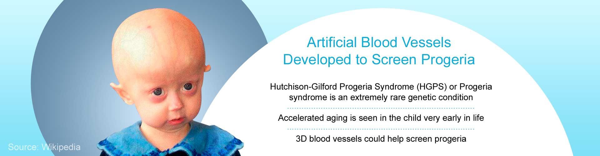 Blood Vessel Model Developed for Screening Drugs for Progeria