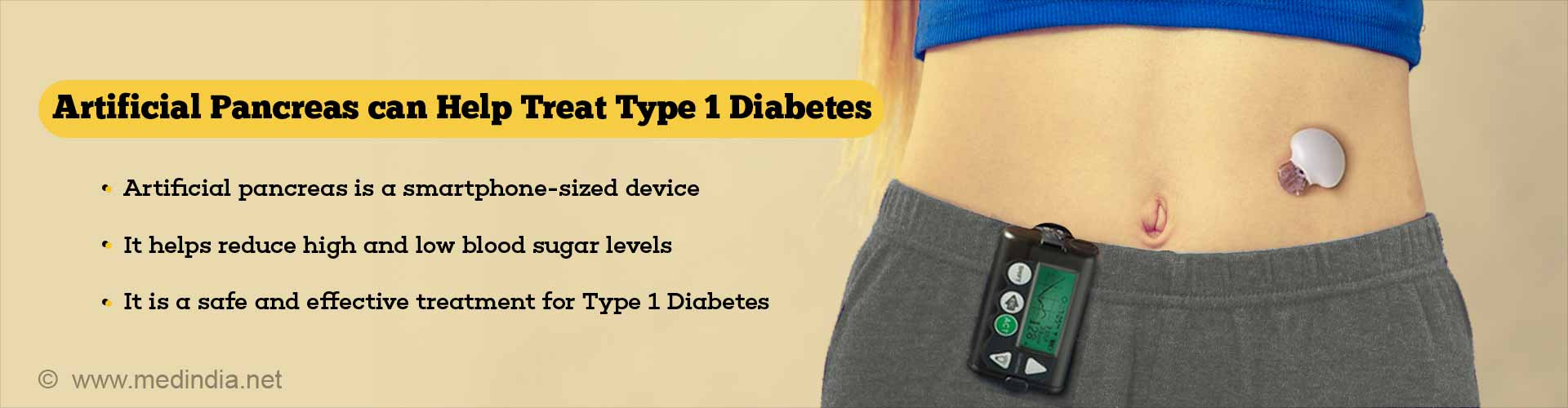 Artificial Pancreas 'Safe'' for Treating Type 1 Diabetes