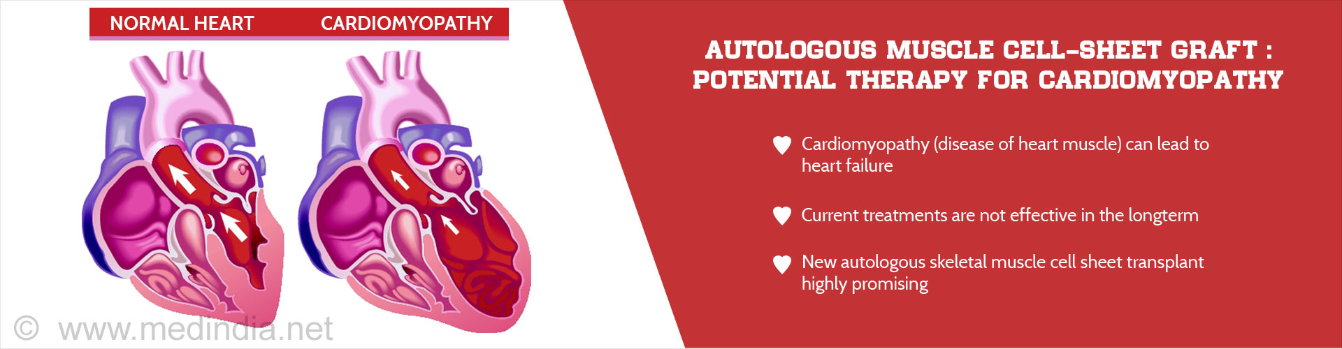 Autologous muscle cell-sheet graft: potential therapy for cardiomyopathy