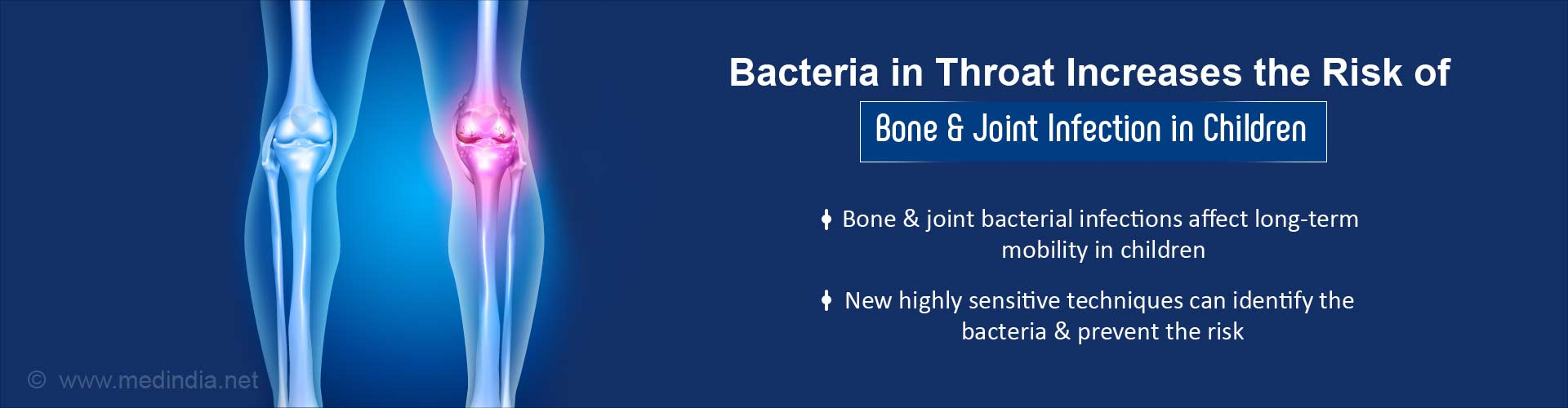 New Techniques Help Identify Bacteria Responsible for Bone, Joint Infection in Children