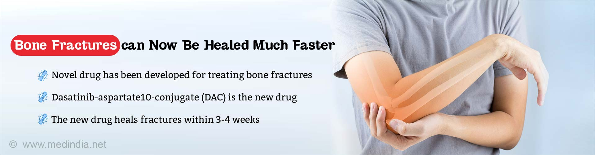 Bone fractures can now be healed much faster. Novel drug has been developed for treating bone fractures. Dasatinib-aspartate10-conjugate (DAC) is the new drug. The new drug heals fractures within 3-4 weeks.