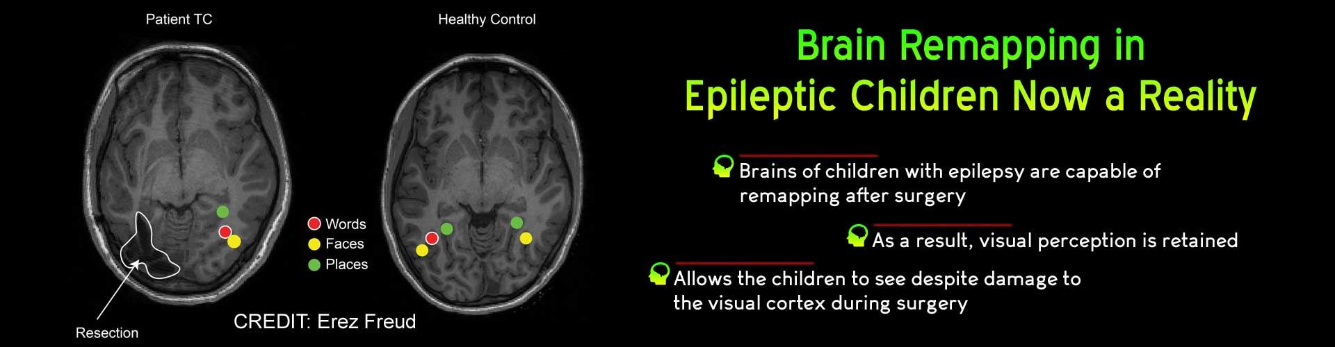 Children with Epilepsy can Retain Visual Perception After Surgery: Here's How