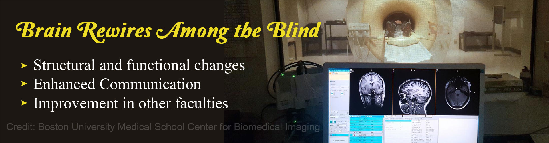 Brain Rewires Among the Blind - Structural and functional changes - Enhanced communication - Improvement in other faculties