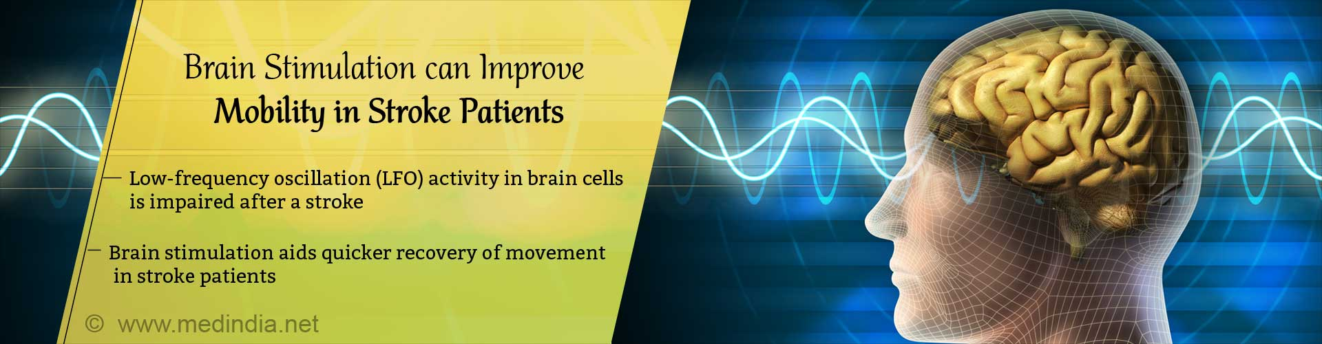 Brain stimulation can improve mobility in stroke patients. Low-frequency oscillation (LFO) activity in brain cells is impaired after a stroke. Brain stimulation aids quicker recovery of movement in stroke patients.