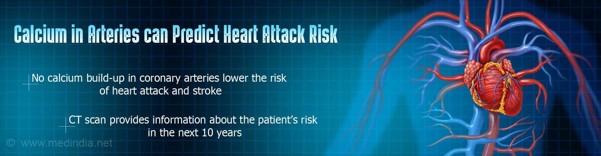 Does Calcium in Arteries Increase the Risk of Heart Attack?