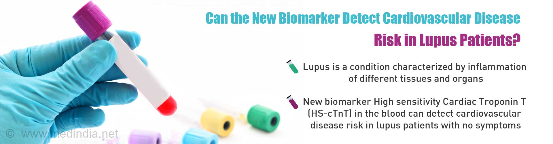 Can the new biomarker detect cardiovascular disease risk in lupus patients?