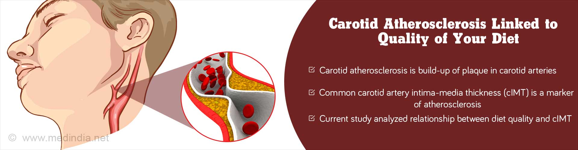 Carotid atherosclerosis linked to quality of your diet