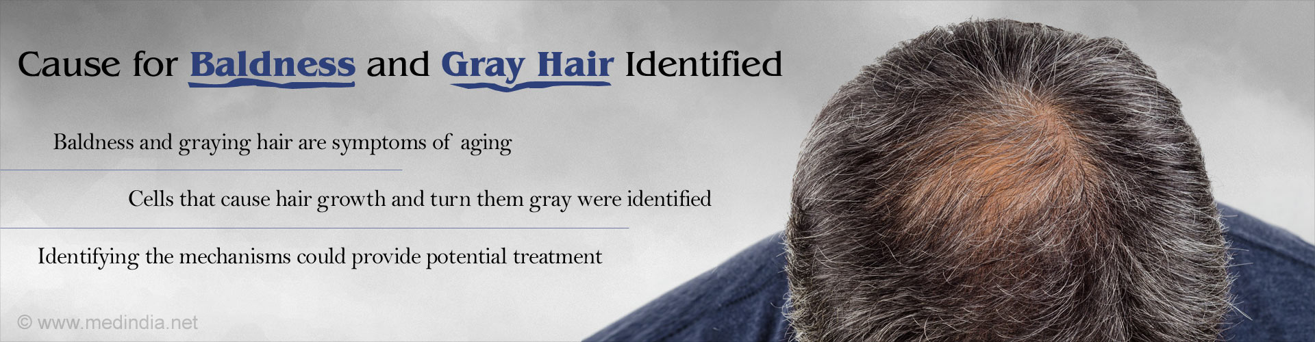 What Causes Baldness and Gray Hair
