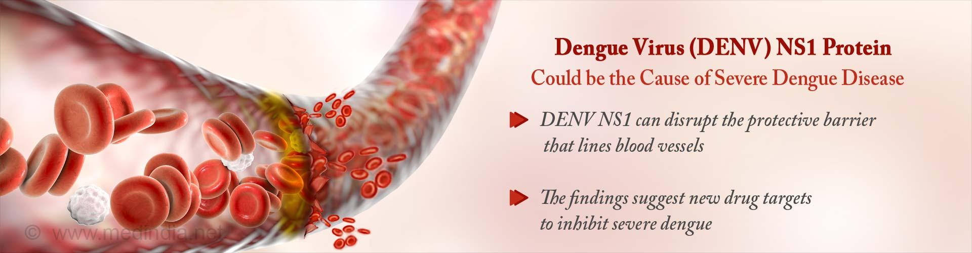 dengue virus (DENV) NS1 protein could be the cause of severe dengue disease - (DENV) NS1 can disrupt the protective barrier that lines blood vessels - The findings suggest new drug targets to inhibit severe dengue