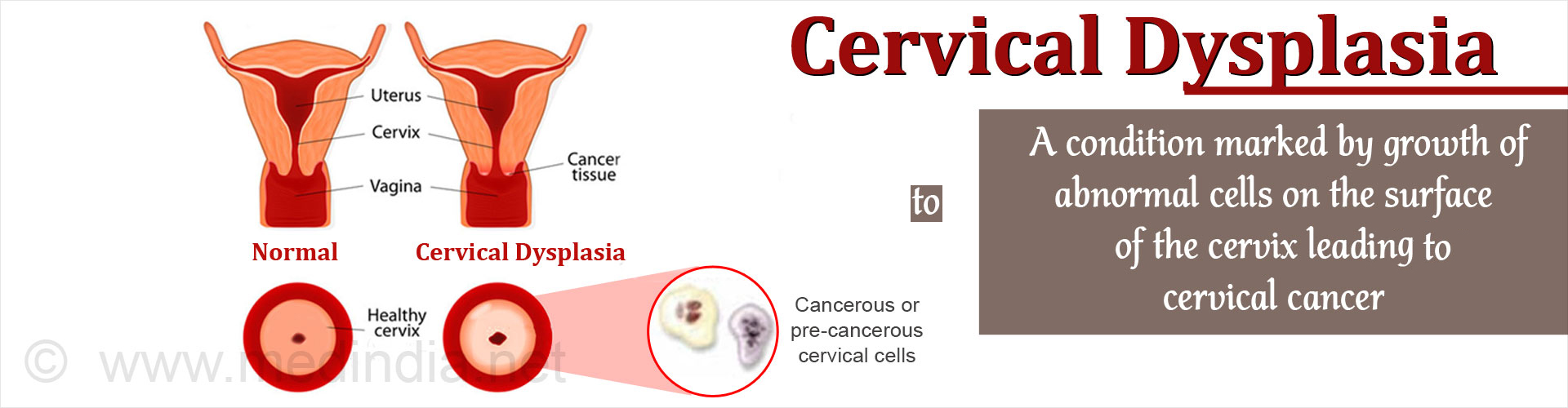 Cervical Dysplasia - A condition marked by growth of abnormal cells on the surface of the cervix leads to cervical cancer