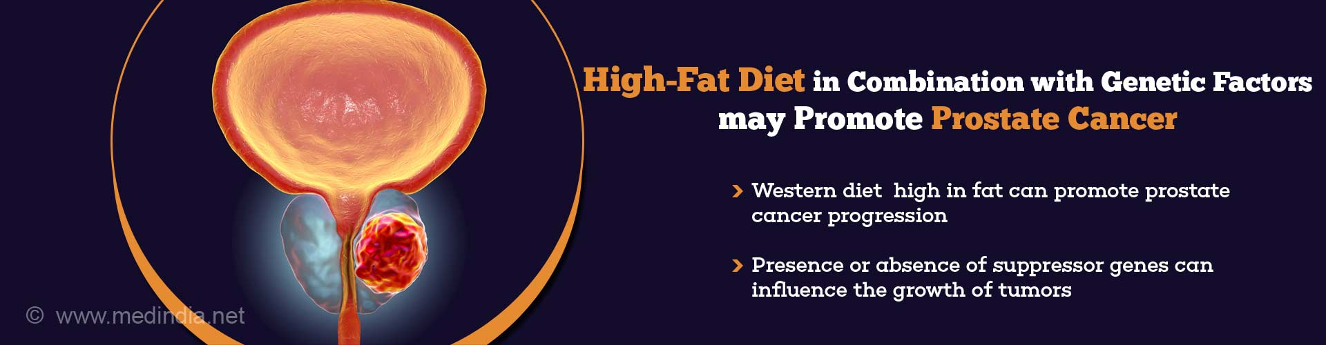 high-fat diet combination with genetic factors may promote prostate cancer