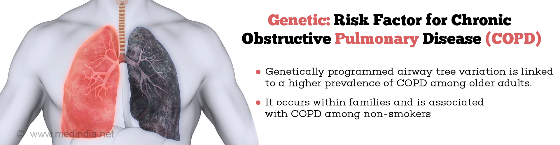 genetic:risk factor for chronic obstructive pulmonary disease (COPD)