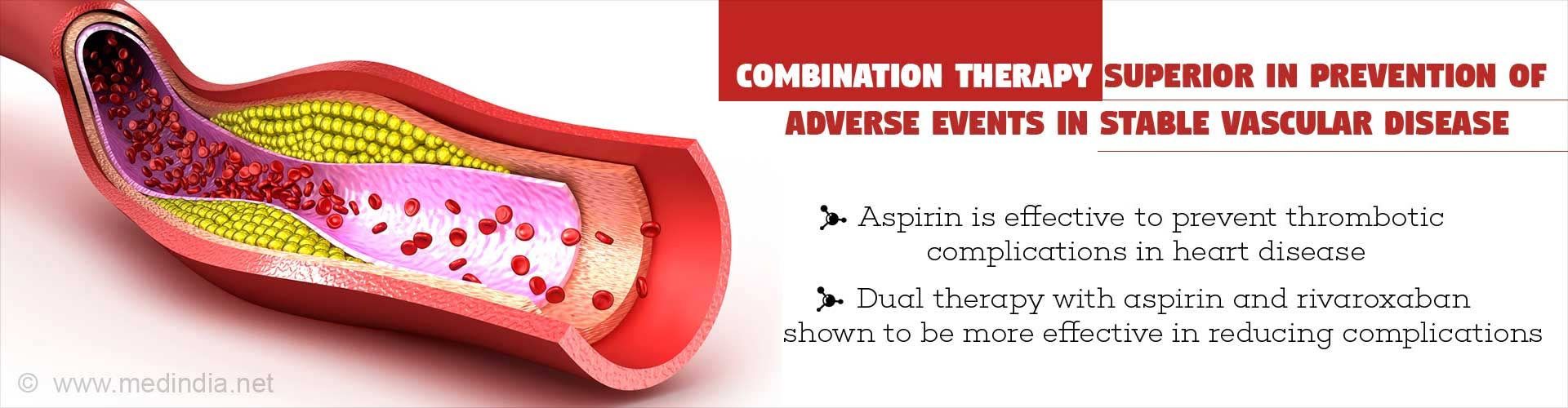 Combination therapy superior in prevention of adverse events in stable vascular disease - Aspirin is effective to prevent thrombotic complications in heart disease - Dual therapy with aspirin and rivaroxaban shown to be more effective in reducing complicaions