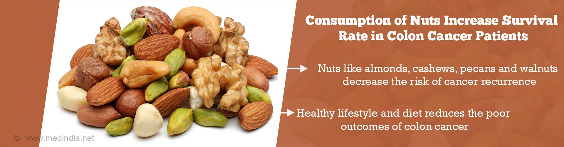 Eating Nuts Increases Survival Rate of Colon Cancer Patients
