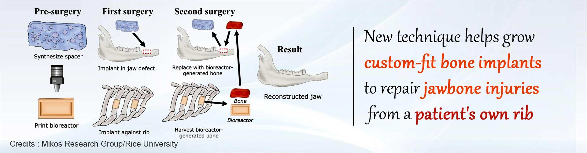 Your Own Rib can Help Reconstruct Your Jawbone: Here's How