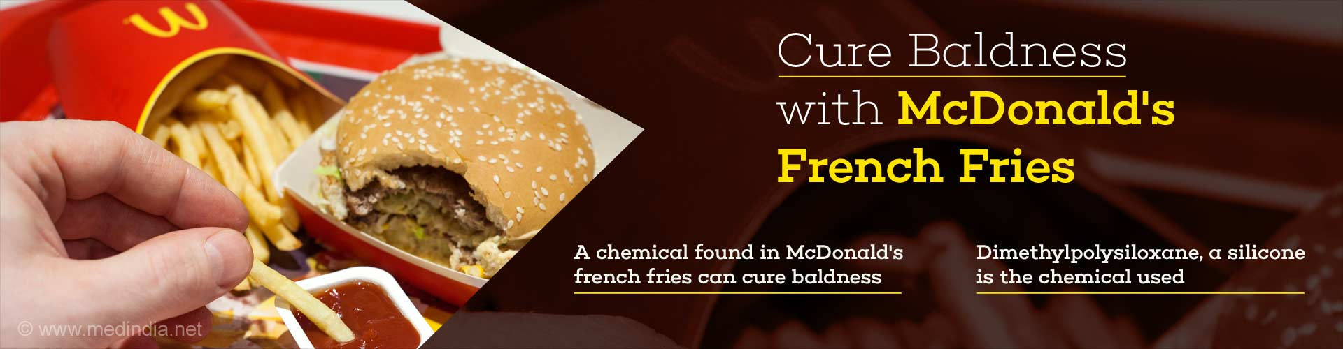 cure baldness with Mcdonald's french fries