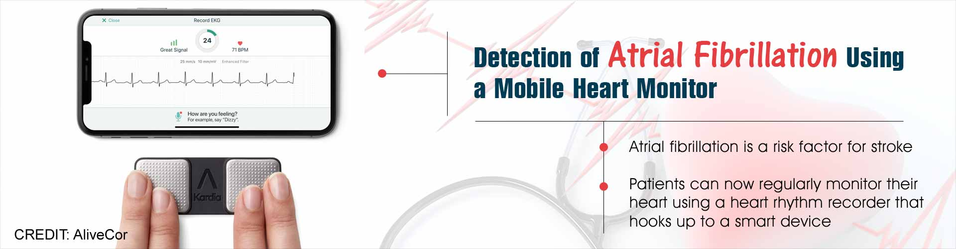 Smartphone Monitoring System Detects Atrial Fibrillation With Excellent Sensitivity