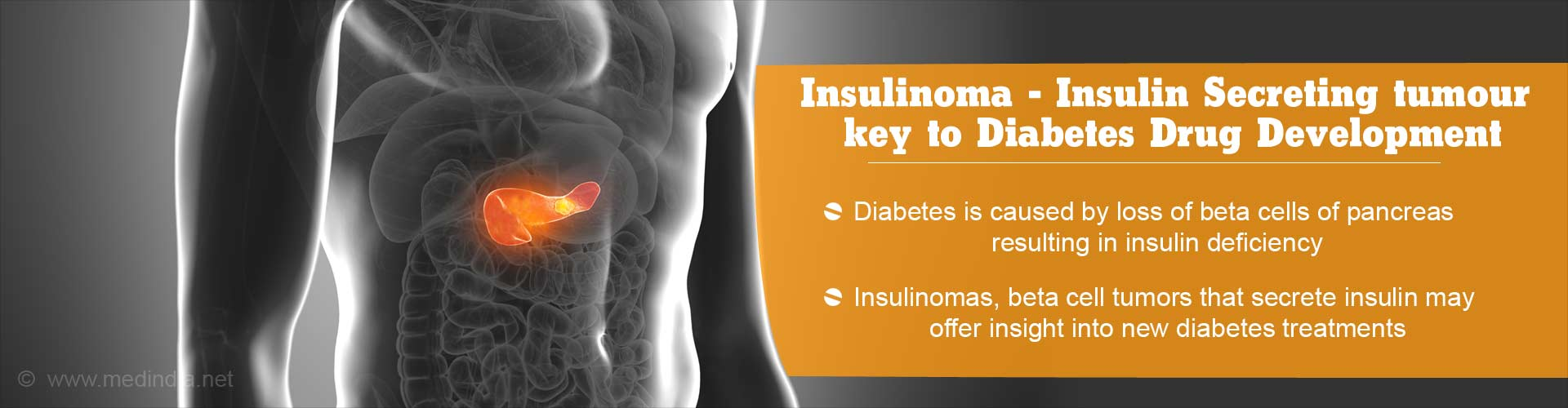 Insulinomas - Benign Tumors Secreting Insulin May Offer Insights To Combat Diabetes