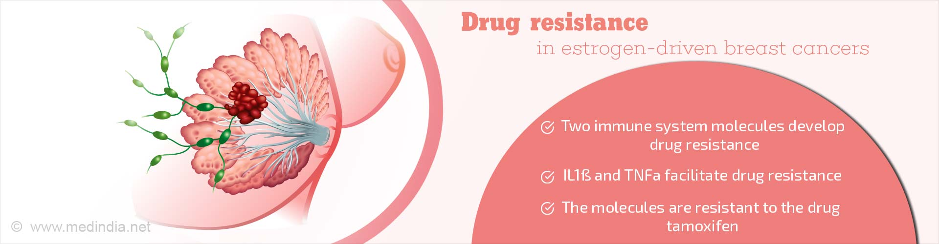 Mechanism Of Drug Resistance In Common Breast Cancer Treatment Identified