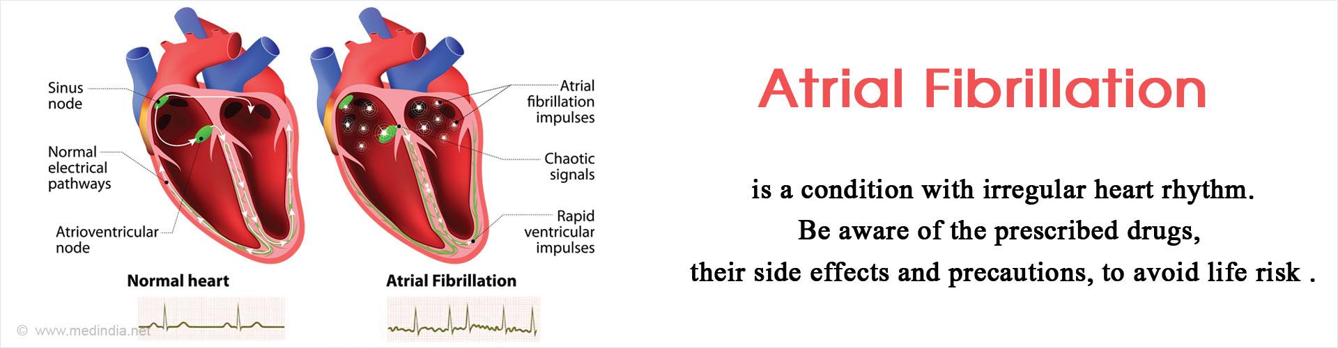 Drugs for Atrial Fibrillation