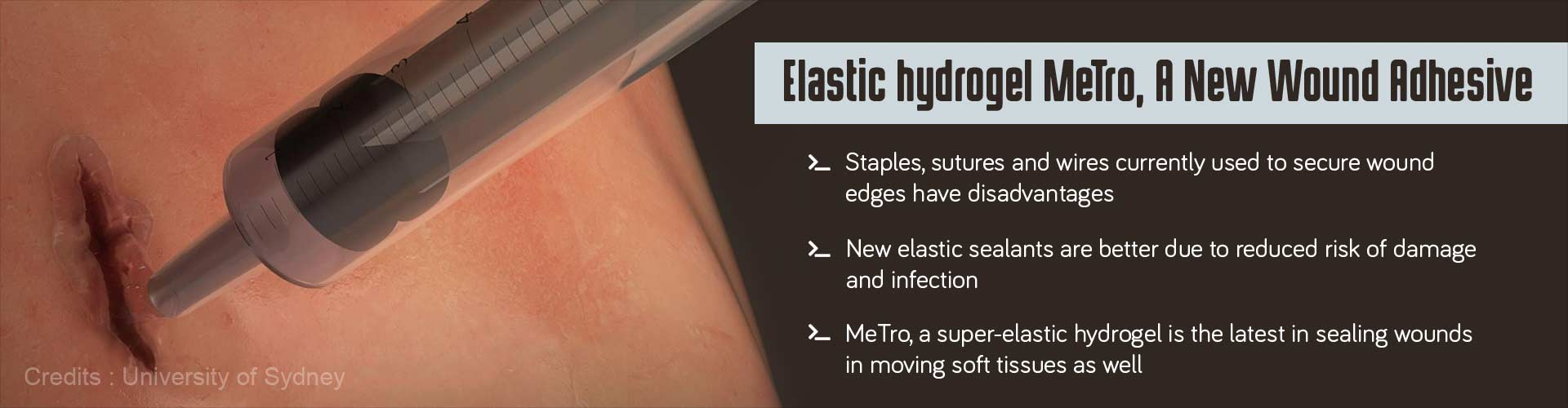 Highly Elastic Hydrogel Seals Wounds Well, Even in Moving Soft Tissues