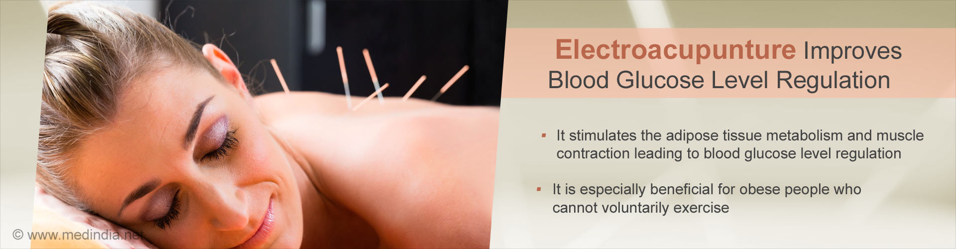 Electro-acupunture improves blood glucose level regulation