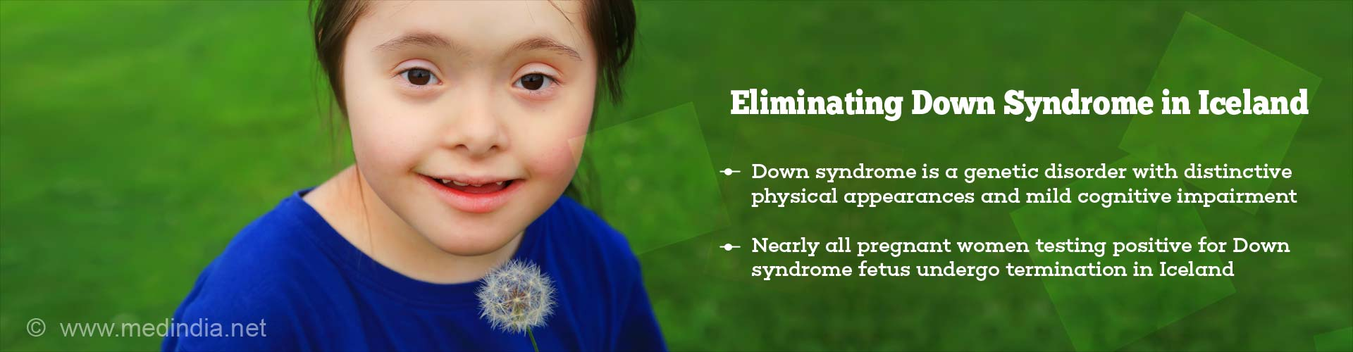 Eliminating Down Syndrome in Iceland - Down syndrome is a genetic disorder with distinctive physical appearance and mild cognitive impairment - Nearly all pregnant women testing positive for Down syndrome fetus undergo termination in Iceland