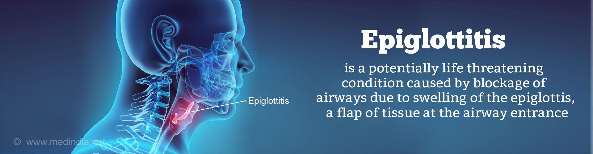 Epiglottitis