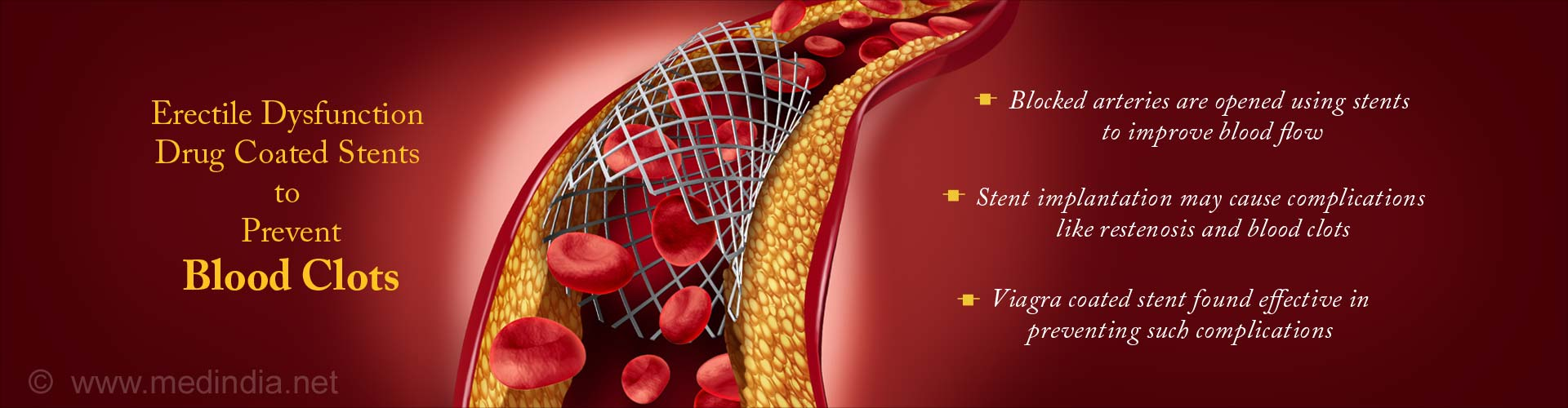 Viagra Coated Stent Reduces Blood Clots