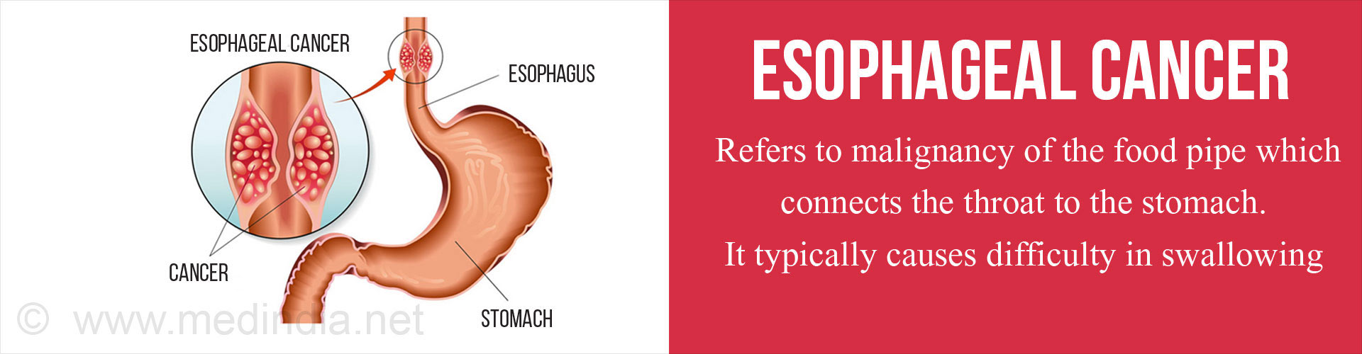 Esophageal cancer refers to malignancy of the food pipe which connects the throat to the stomach. It typically causes difficulty in swallowing