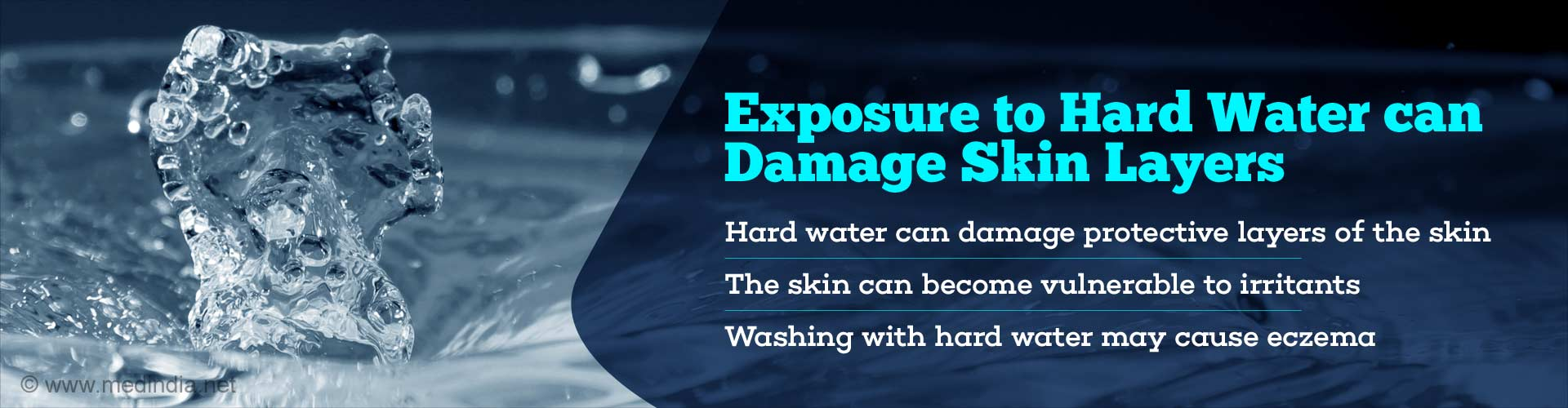 Exposure to hard water can damage skin layers - Hard water can damage protective layers of the skin - The skin can become vulnerable to irritants - Washing with hard water may cause eczema