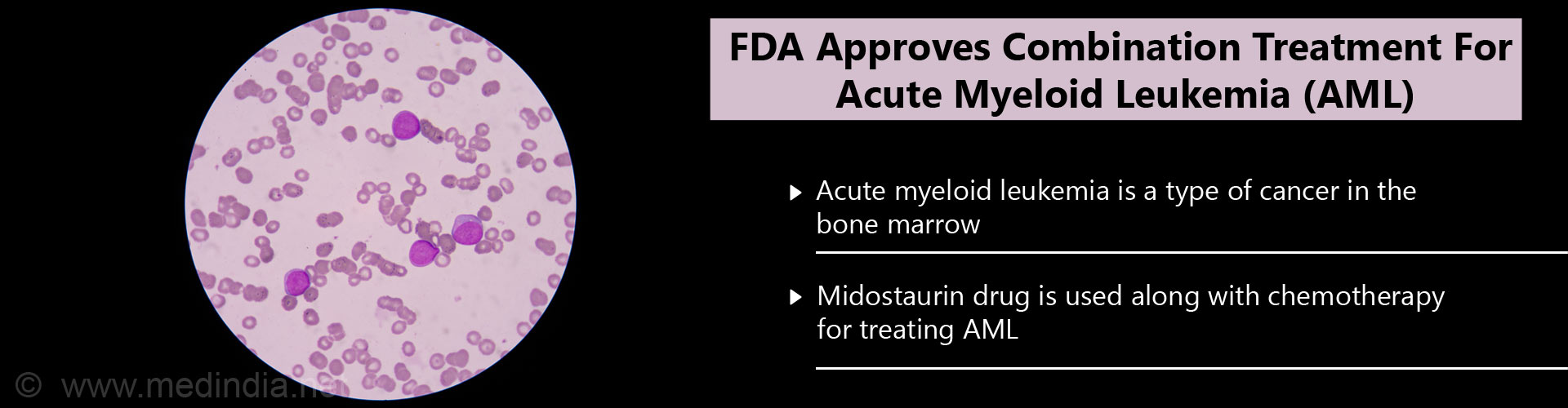 FDA approves combination treatment for acute myeloid leukemia (AML) - Acute myeloid leukemia (AML) is a tyoe of cancer in the bone marrow - Midostaurin drug is used along with chemotherapy for treating AML