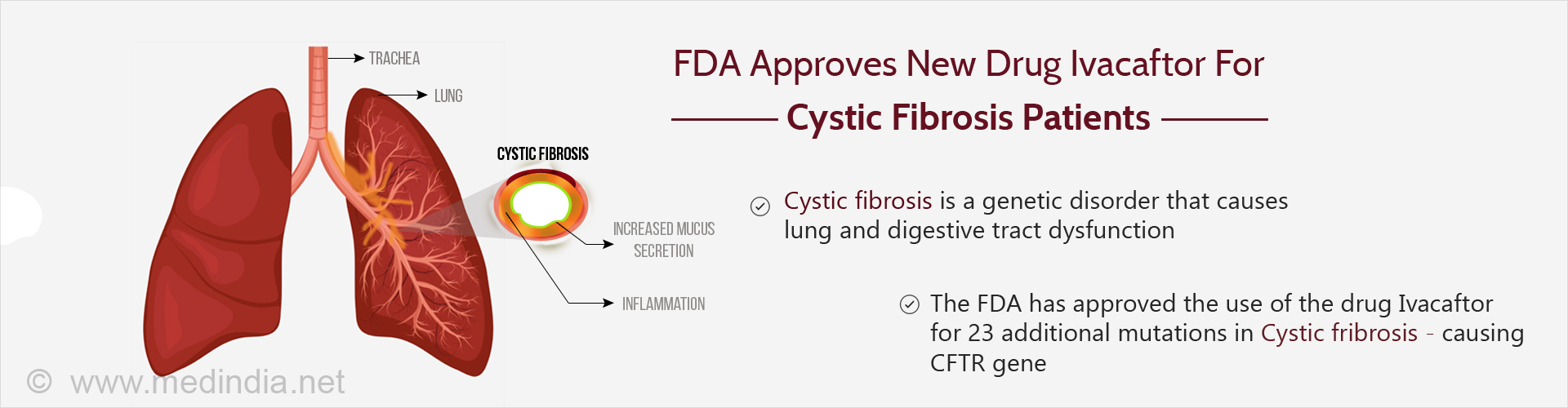 FDA Approves Ivacaftor Drug for Cystic Fibrosis : More Patients to Benefit