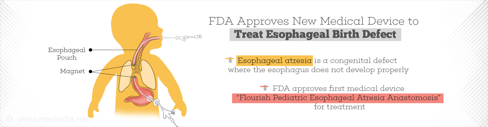 FDA Authorizes First Medical Device for Esophageal Birth Defect in Babies