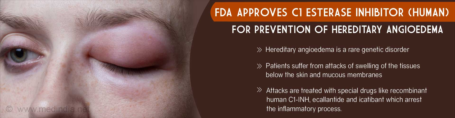 Health Tip on FDA Approved C1 Esterase Inhibitor (Human) for Hereditary Angioedema