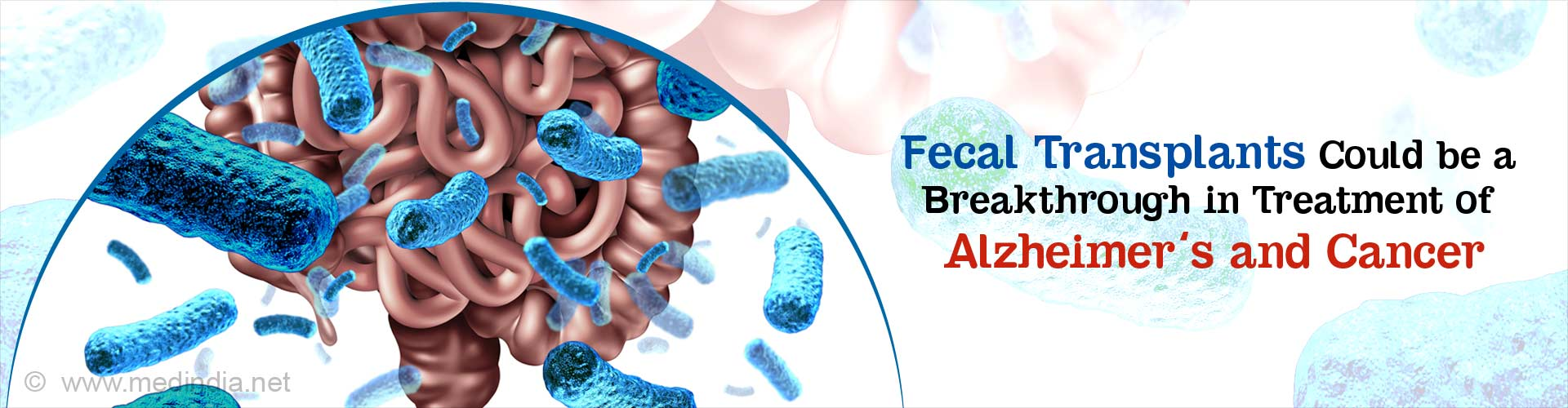 Fecal Transplants May Help Treat Alzheimer's and Cancer