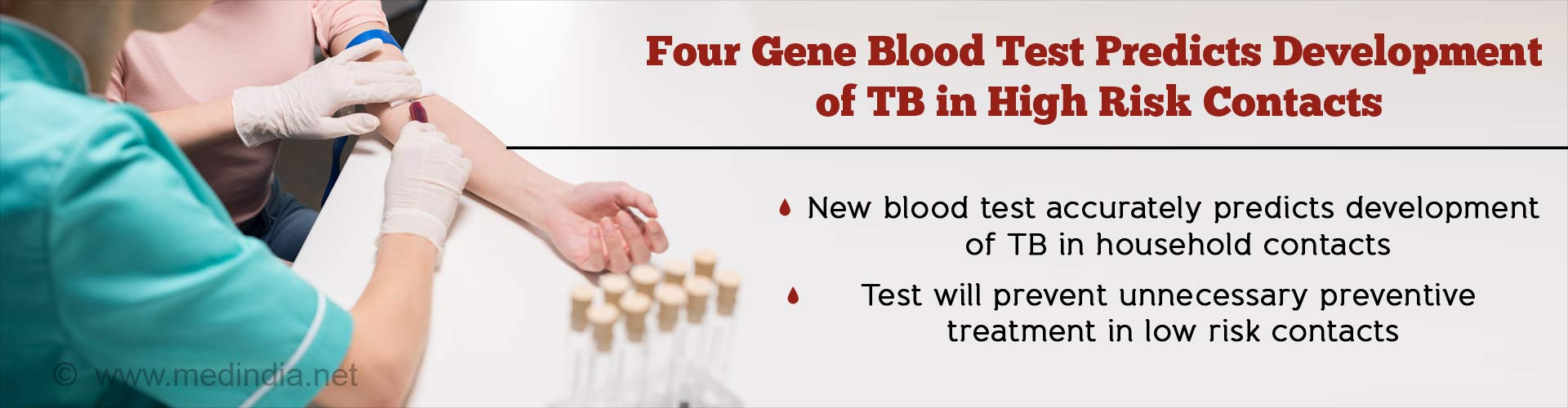 Novel Blood Test Predicts Risk of Tuberculosis (TB) Two Years Before Onset