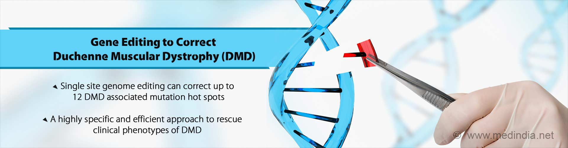 gene editing to correct duchenne muscular dystrophy (DMD)