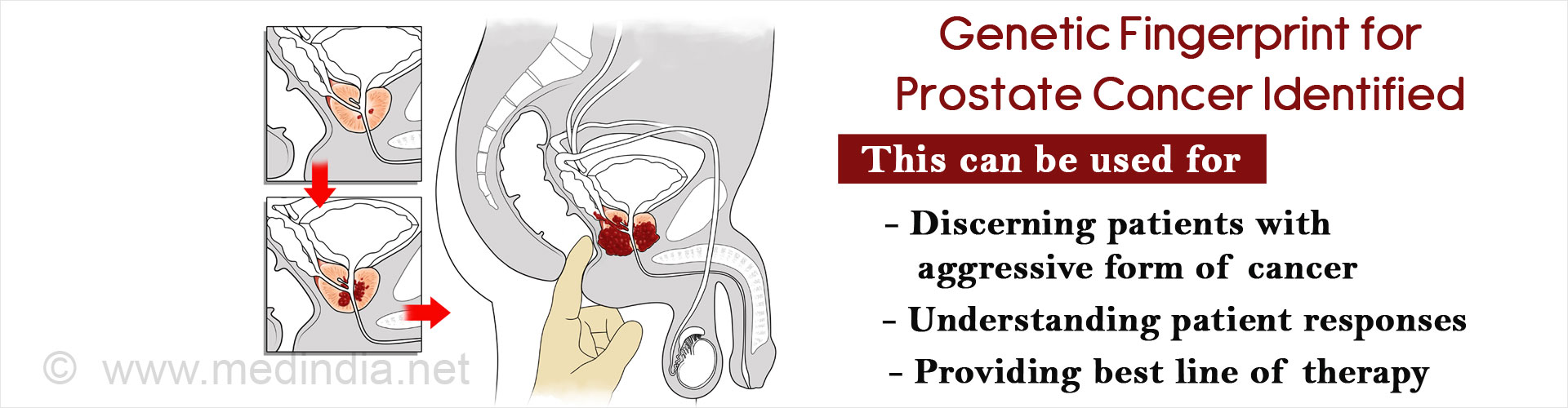Genetic fingerprint for prostate cancer identified  This can be used for: - discerning patients with aggressive form of cancer - understanding patient responses - providing best line of therapy