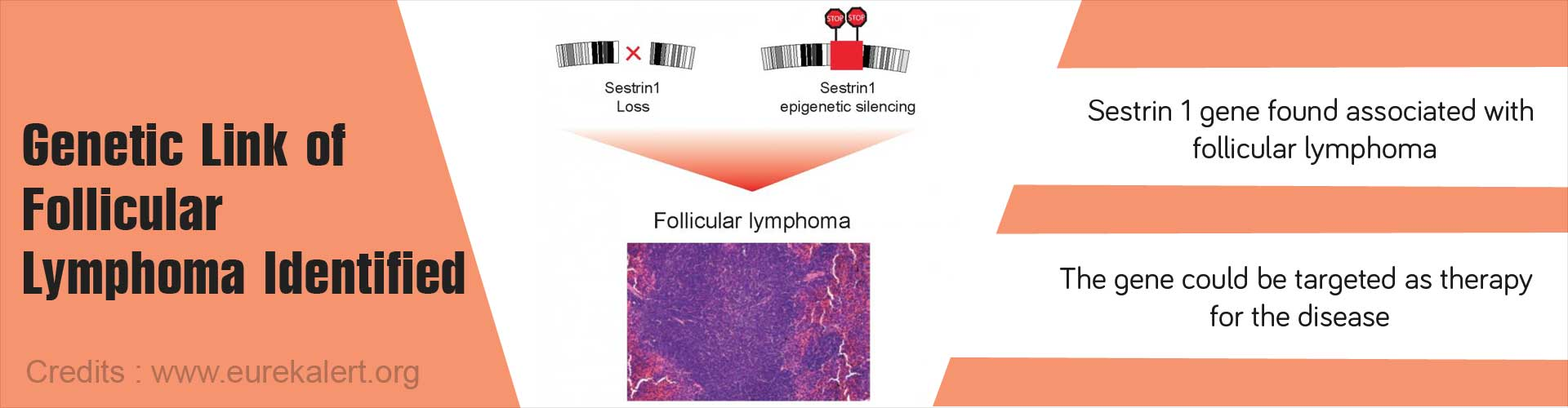 Genetic link of follicular lymphoma identified